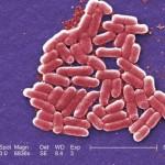 スーパー耐性菌の悲劇?人口消滅させるほど威力を持つ菌は実は人間が作ったのかもしれない