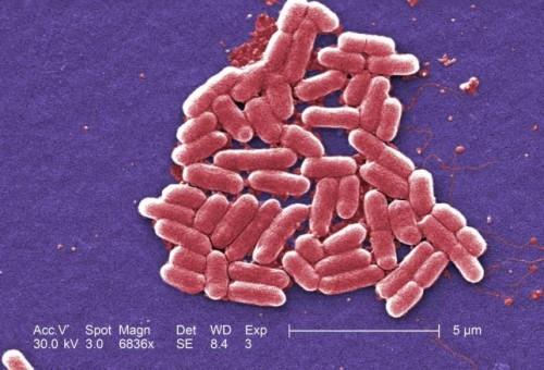 「カルバペネム耐性腸内細菌科細菌(cre)」の画像検索結果